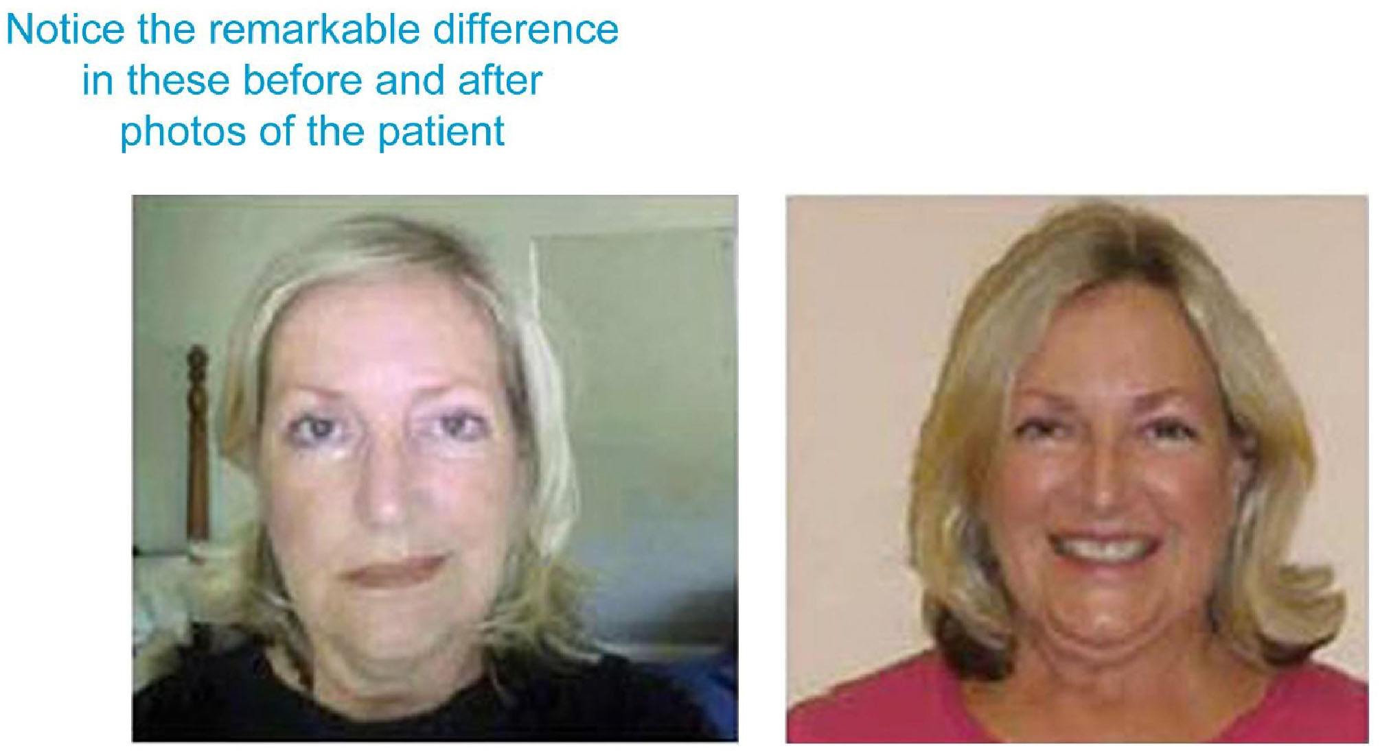 how to get testimonials from patients